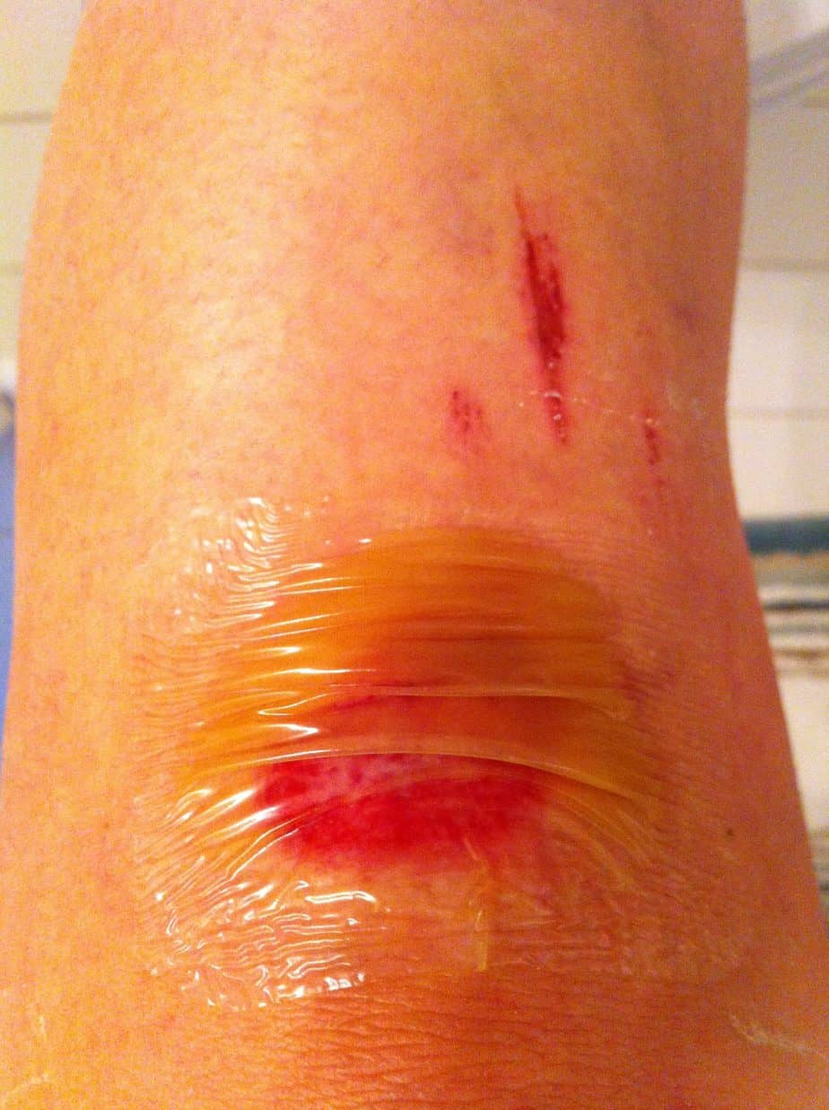 Hit the Deck? The Most Effective Road Rash Treatment